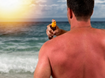 Man applying sunscreen to burned back